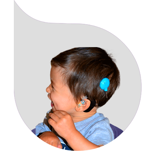 Pediatric Cochlear Implant Surgery